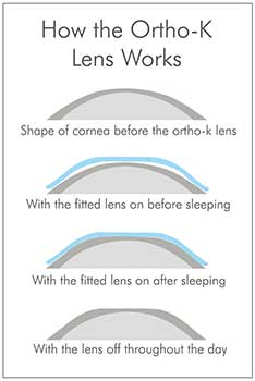 how orthok lens works kent wa