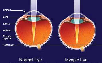 Normal Eye Vs. Myopic Eye, Kent, WA Ortho-K